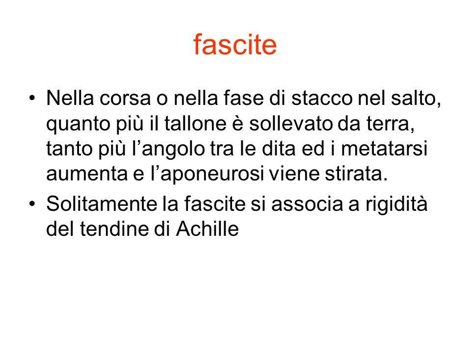 fascite