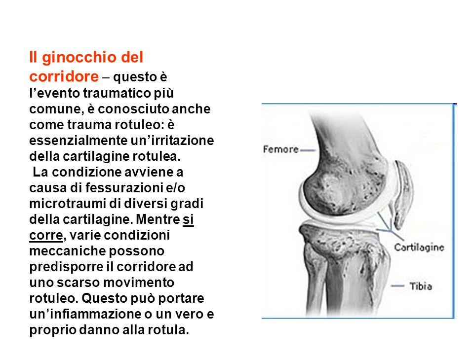 Il ginocchio del corridore – questo è l'evento traumatico più comune, è conosciuto anche come trauma rotuleo: è essenzialmente un'irritazione della cartilagine rotulea.