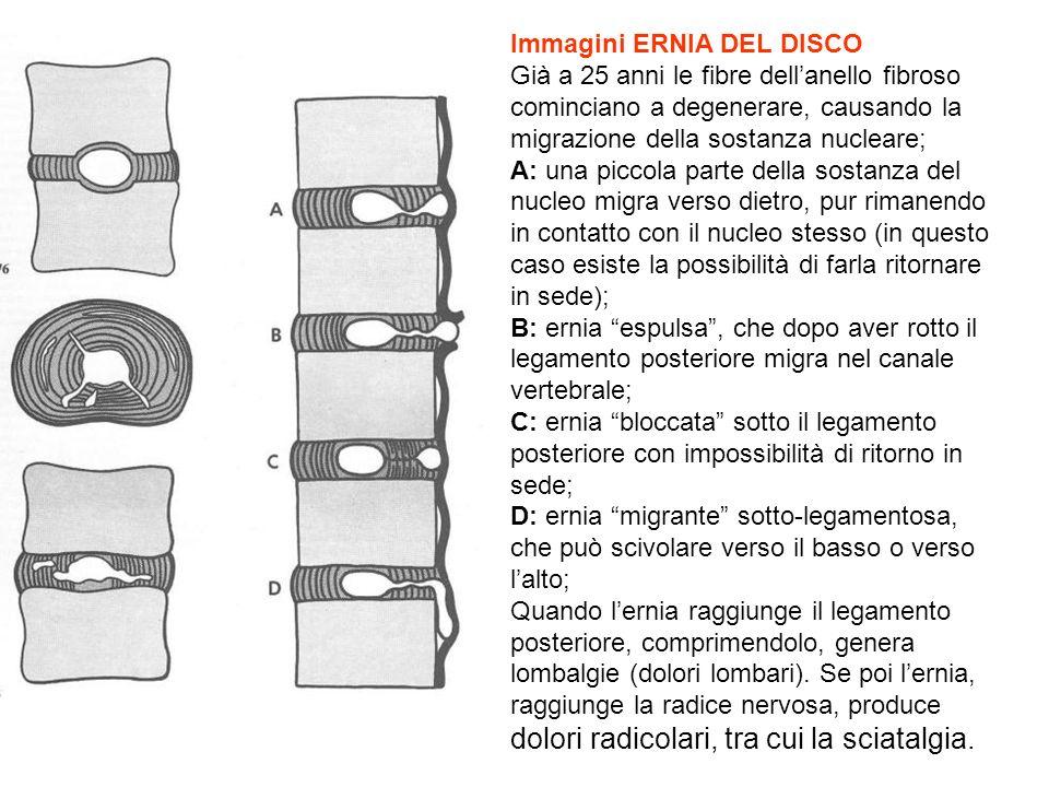 Immagini ERNIA DEL DISCO