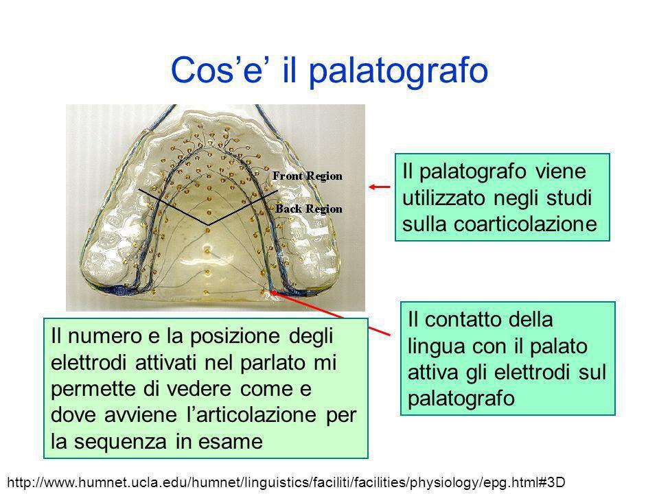 Cos'e' il palatografo Il palatografo viene utilizzato negli studi sulla coarticolazione.