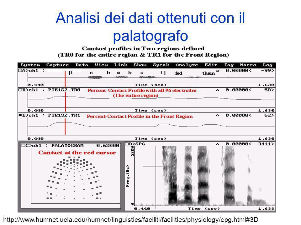 Analisi dei dati ottenuti con il palatografo