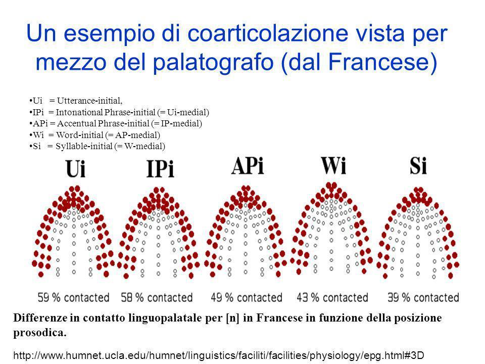 Un esempio di coarticolazione vista per mezzo del palatografo (dal Francese)