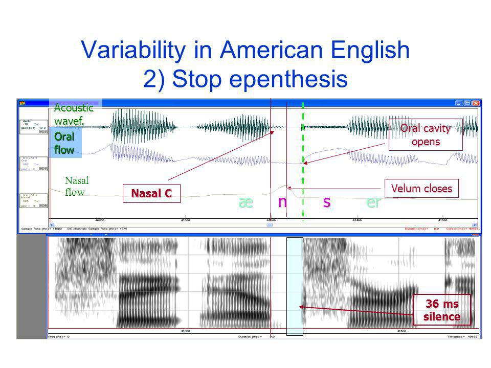 Variability in American English 2) Stop epenthesis