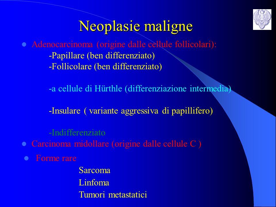 Neoplasie maligne Adenocarcinoma (origine dalle cellule follicolari):