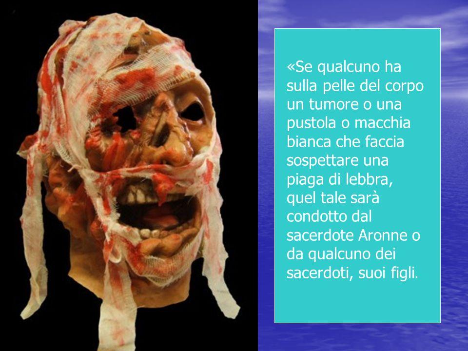 «Se qualcuno ha sulla pelle del corpo un tumore o una pustola o macchia bianca che faccia sospettare una piaga di lebbra, quel tale sarà condotto dal sacerdote Aronne o da qualcuno dei sacerdoti, suoi figli.