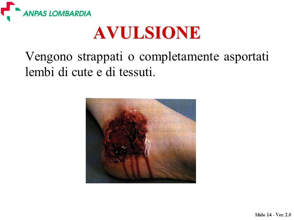 AVULSIONE Vengono strappati o completamente asportati lembi di cute e di tessuti.