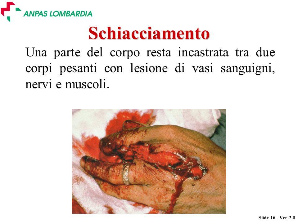 Schiacciamento Una parte del corpo resta incastrata tra due corpi pesanti con lesione di vasi sanguigni, nervi e muscoli.