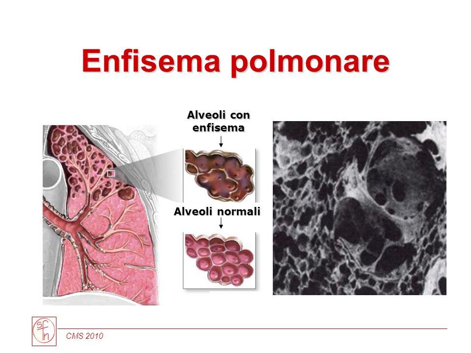 Enfisema polmonare Alveoli con enfisema Alveoli normali