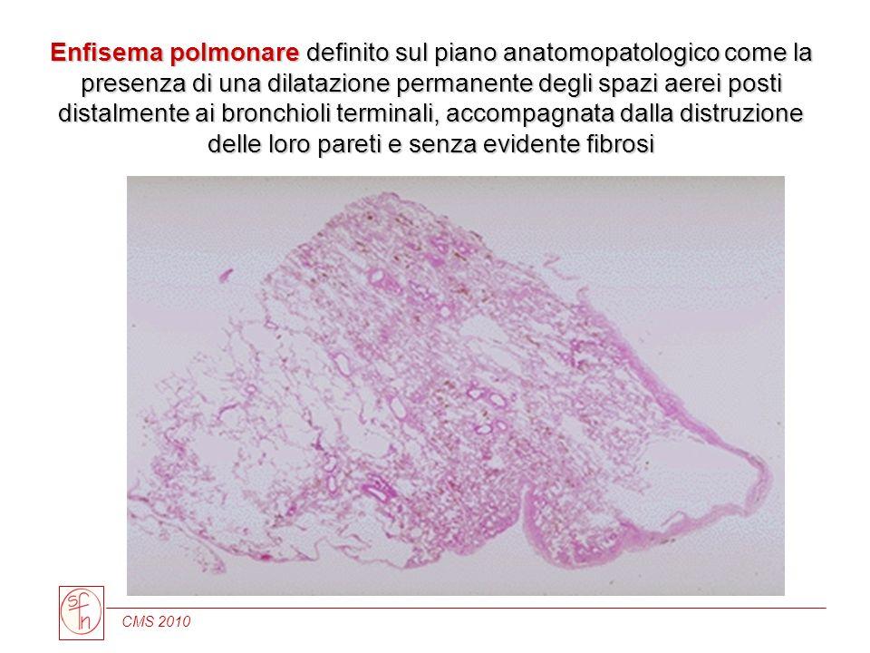 Enfisema polmonare definito sul piano anatomopatologico come la presenza di una dilatazione permanente degli spazi aerei posti distalmente ai bronchioli terminali, accompagnata dalla distruzione delle loro pareti e senza evidente fibrosi
