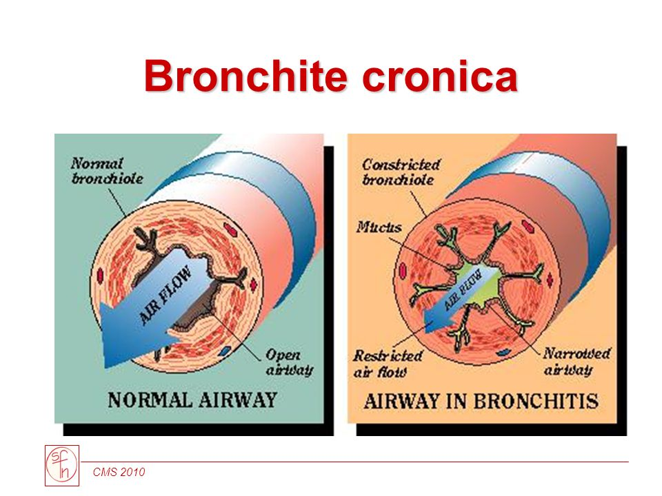 Bronchite cronica