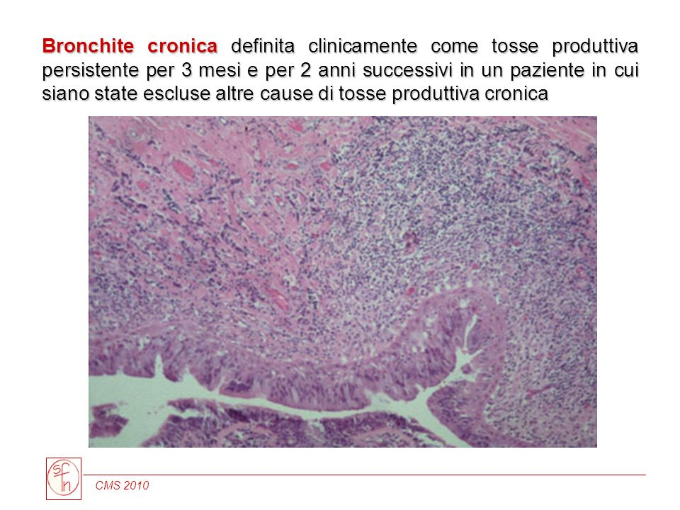 Bronchite cronica definita clinicamente come tosse produttiva persistente per 3 mesi e per 2 anni successivi in un paziente in cui siano state escluse altre cause di tosse produttiva cronica