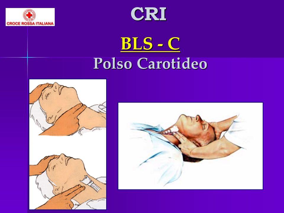CRI BLS - C Polso Carotideo
