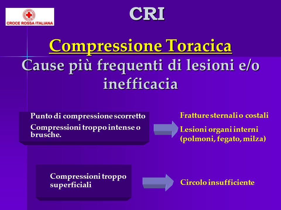 Compressione Toracica Cause più frequenti di lesioni e/o inefficacia