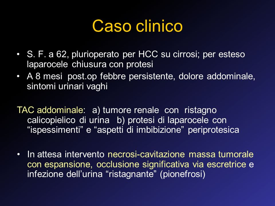 Caso clinico S. F. a 62, plurioperato per HCC su cirrosi; per esteso laparocele chiusura con protesi.