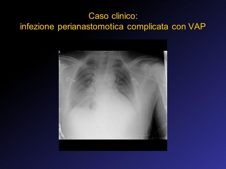 Caso clinico: infezione perianastomotica complicata con VAP