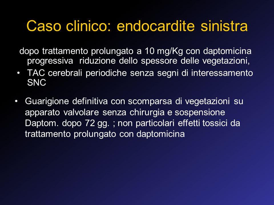Caso clinico: endocardite sinistra