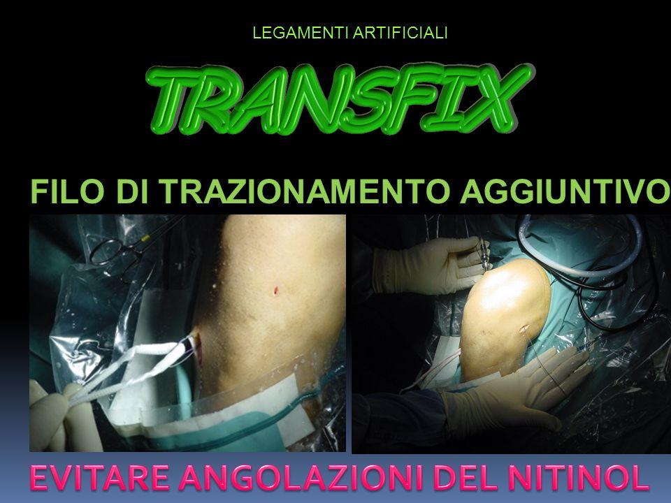FILO DI TRAZIONAMENTO AGGIUNTIVO EVITARE ANGOLAZIONI DEL NITINOL