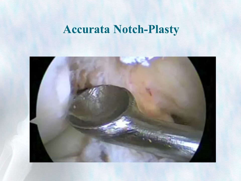 Accurata Notch-Plasty