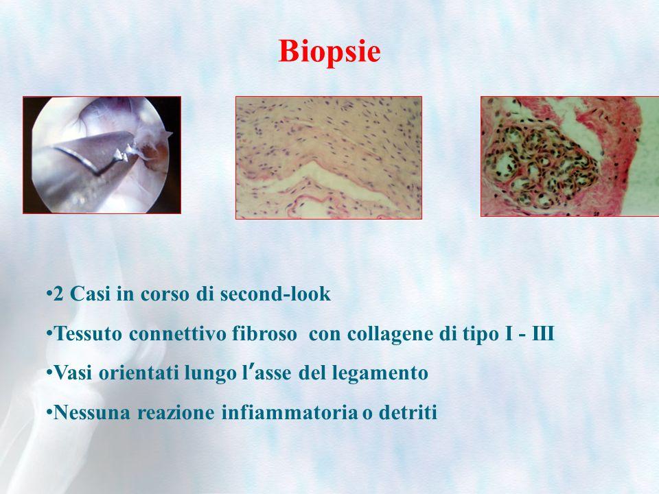 Biopsie 2 Casi in corso di second-look