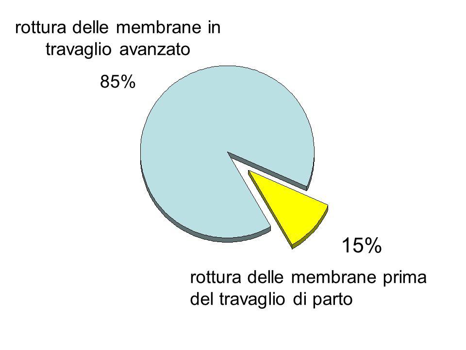 rottura delle membrane in travaglio avanzato