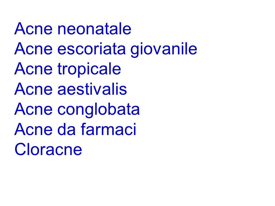 Acne neonatale Acne escoriata giovanile. Acne tropicale. Acne aestivalis. Acne conglobata. Acne da farmaci.