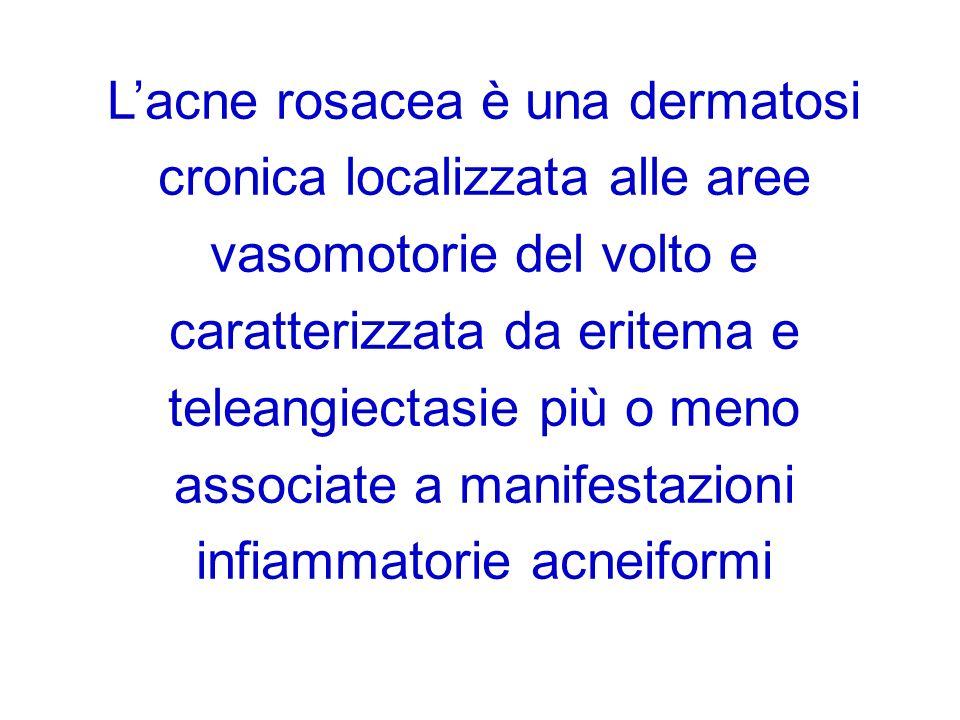 L'acne rosacea è una dermatosi cronica localizzata alle aree vasomotorie del volto e caratterizzata da eritema e teleangiectasie più o meno associate a manifestazioni infiammatorie acneiformi