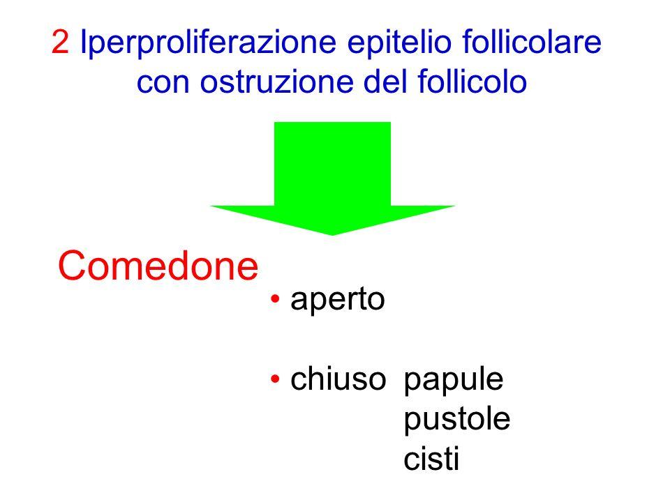 Comedone 2 Iperproliferazione epitelio follicolare