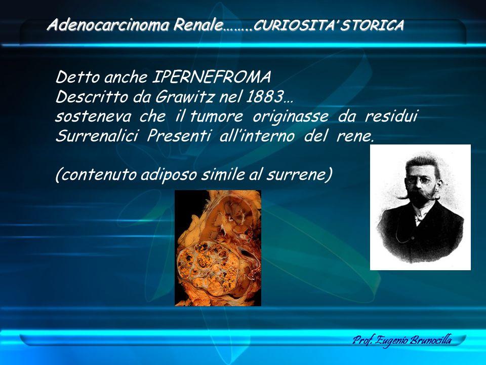Adenocarcinoma Renale……..CURIOSITA' STORICA