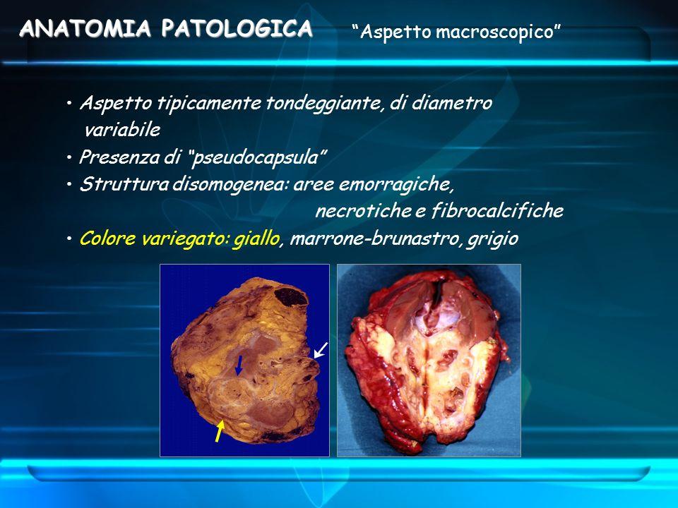 ANATOMIA PATOLOGICA Aspetto macroscopico