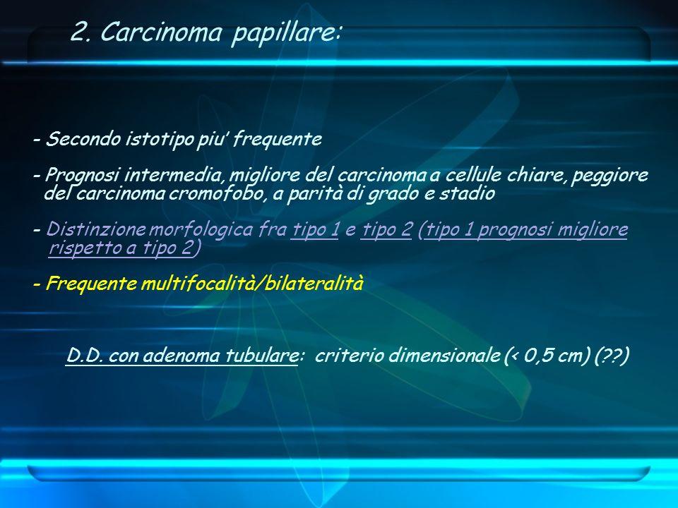 2. Carcinoma papillare: - Secondo istotipo piu' frequente