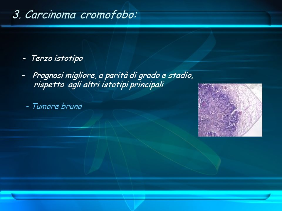 3. Carcinoma cromofobo: - Terzo istotipo