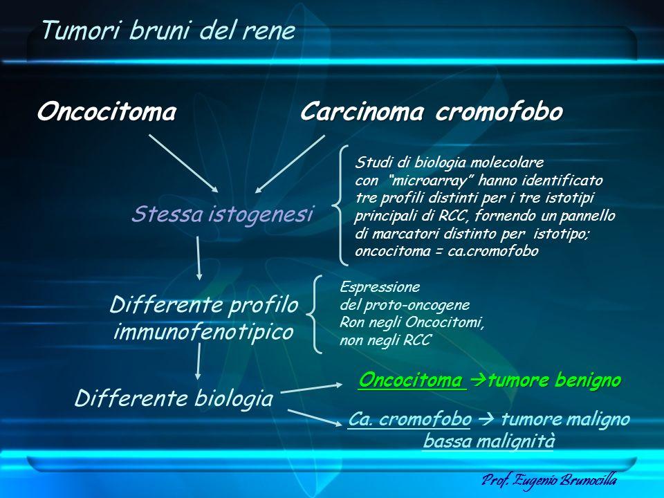 Oncocitoma tumore benigno