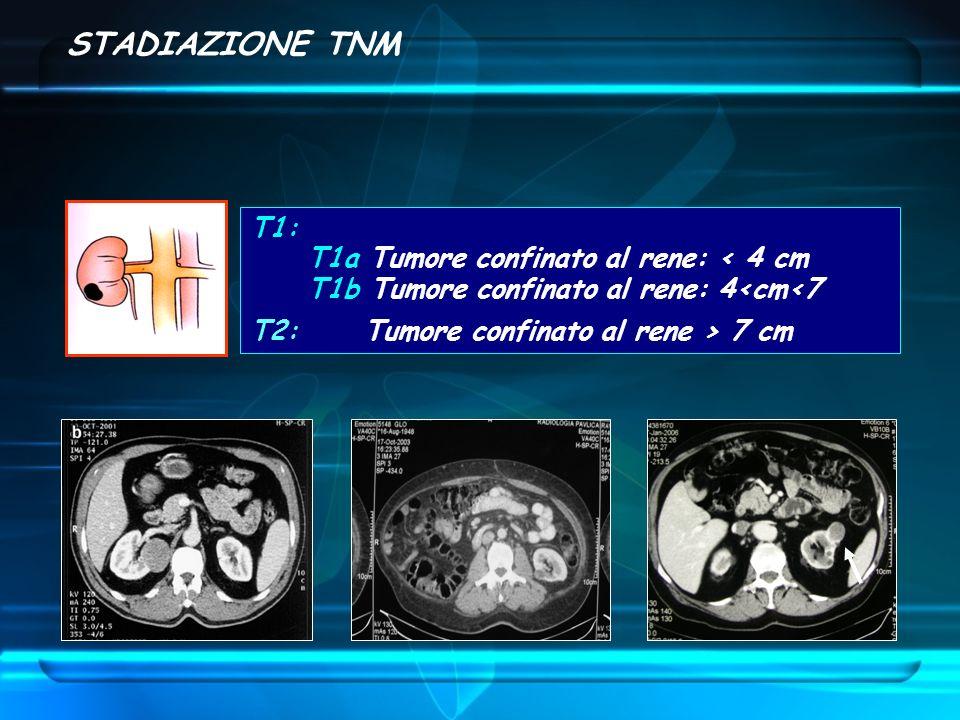 STADIAZIONE TNM T1: T1a Tumore confinato al rene: < 4 cm