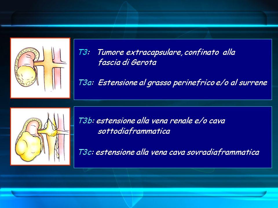 T3: Tumore extracapsulare, confinato alla