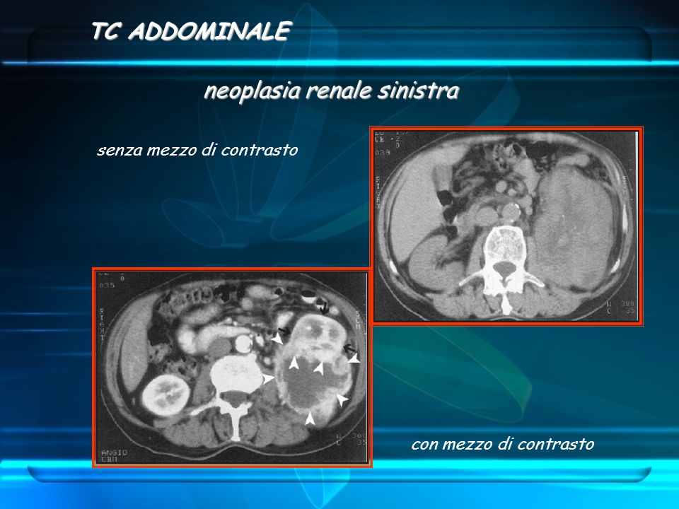 neoplasia renale sinistra