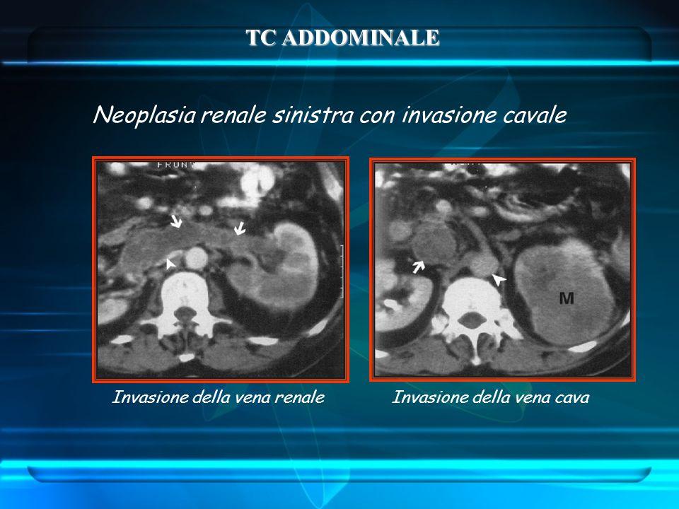 Neoplasia renale sinistra con invasione cavale