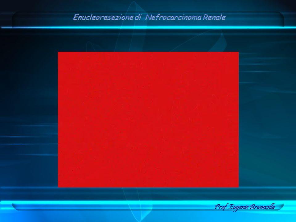 Enucleoresezione di Nefrocarcinoma Renale