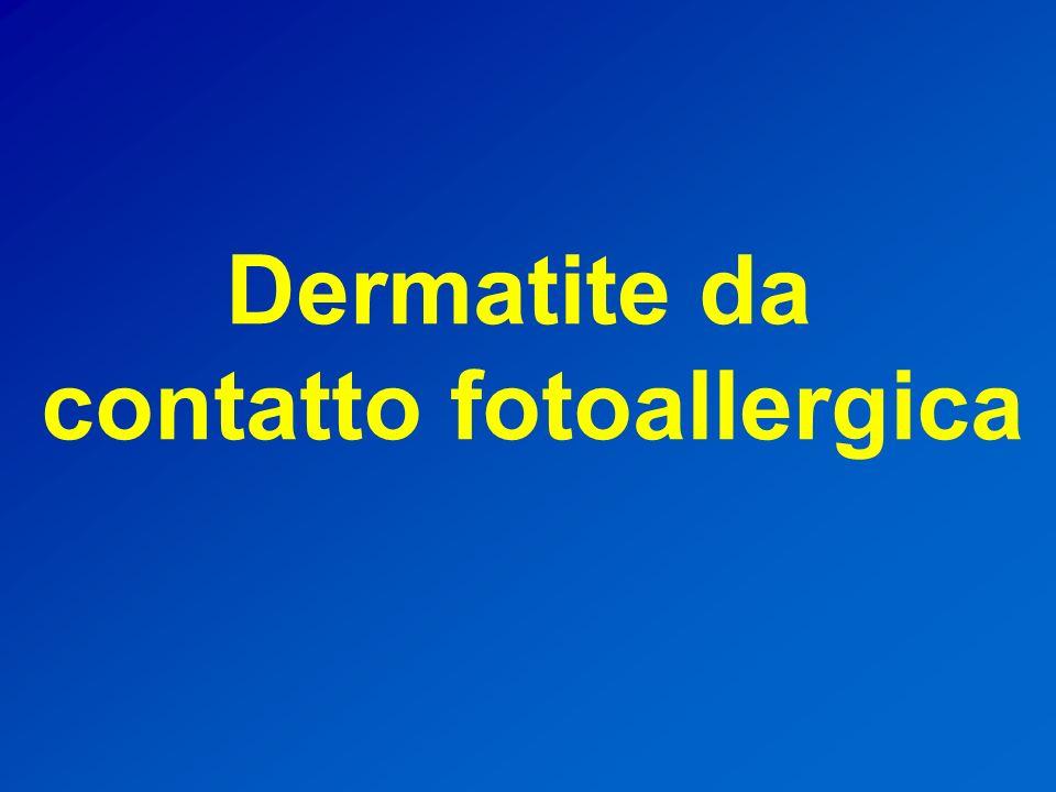 contatto fotoallergica