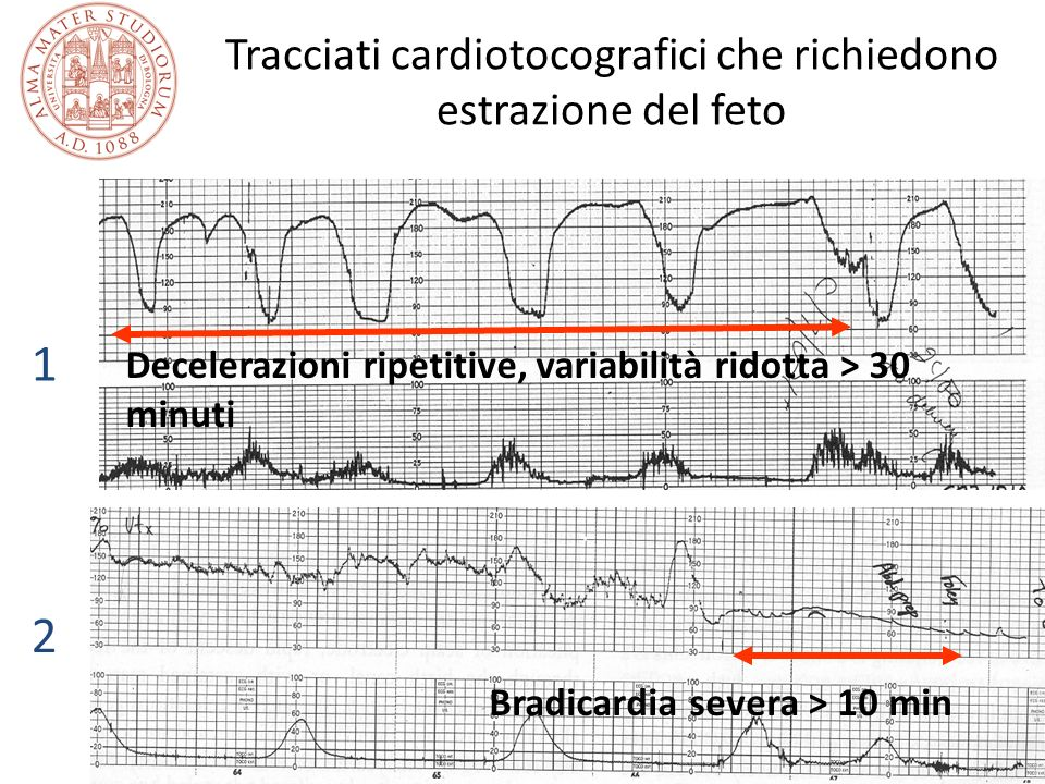 Tracciati cardiotocografici che richiedono estrazione del feto
