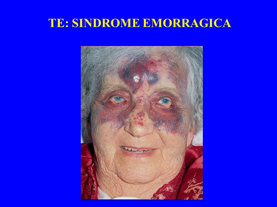 TE: SINDROME EMORRAGICA
