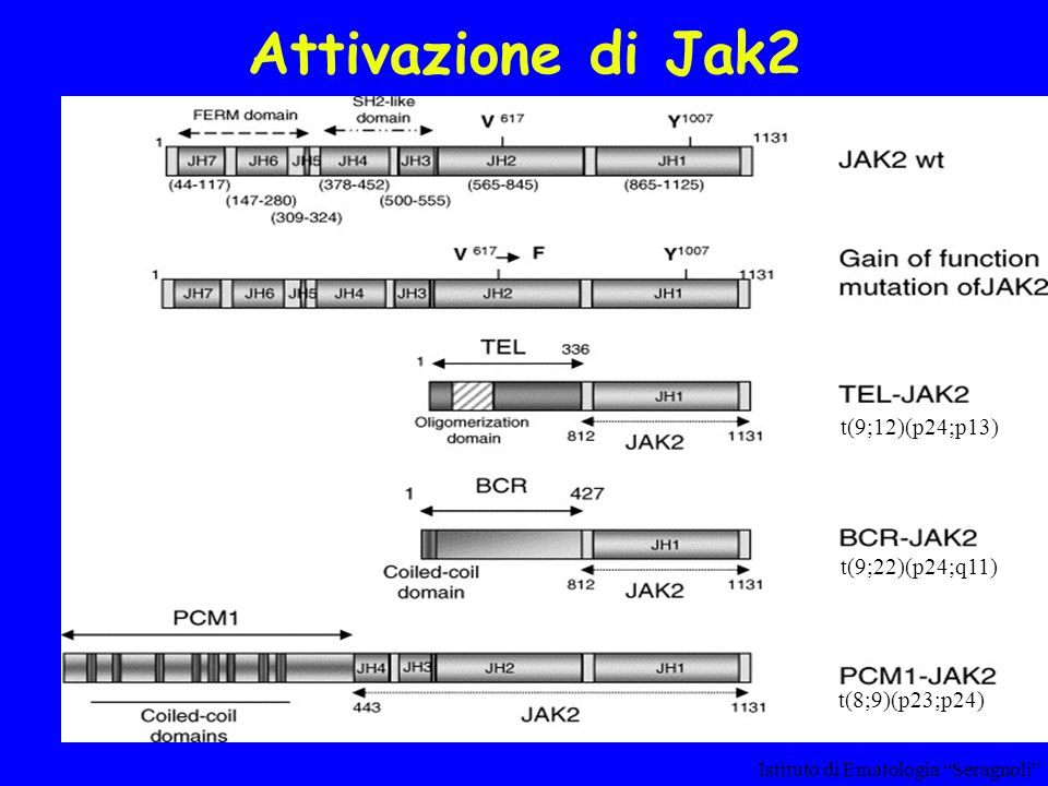 Attivazione di Jak2 t(9;12)(p24;p13) t(9;22)(p24;q11) t(8;9)(p23;p24)
