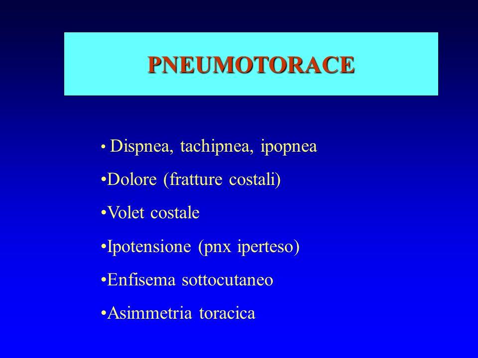PNEUMOTORACE Dolore (fratture costali) Volet costale