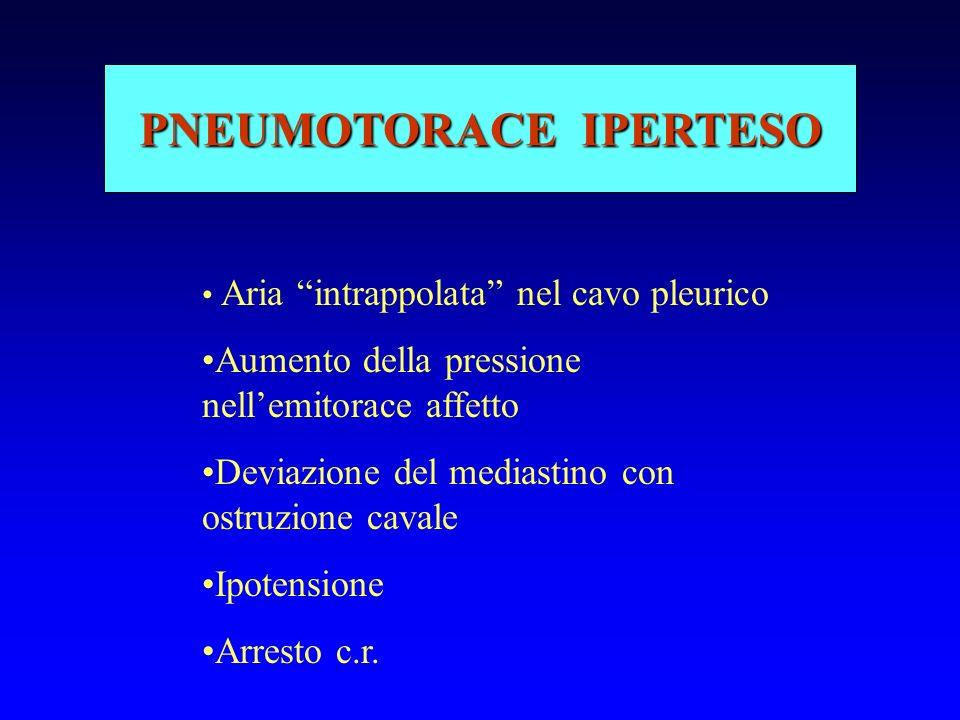 PNEUMOTORACE IPERTESO