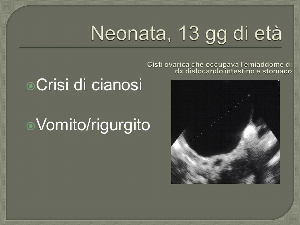 Neonata, 13 gg di età Crisi di cianosi Vomito/rigurgito