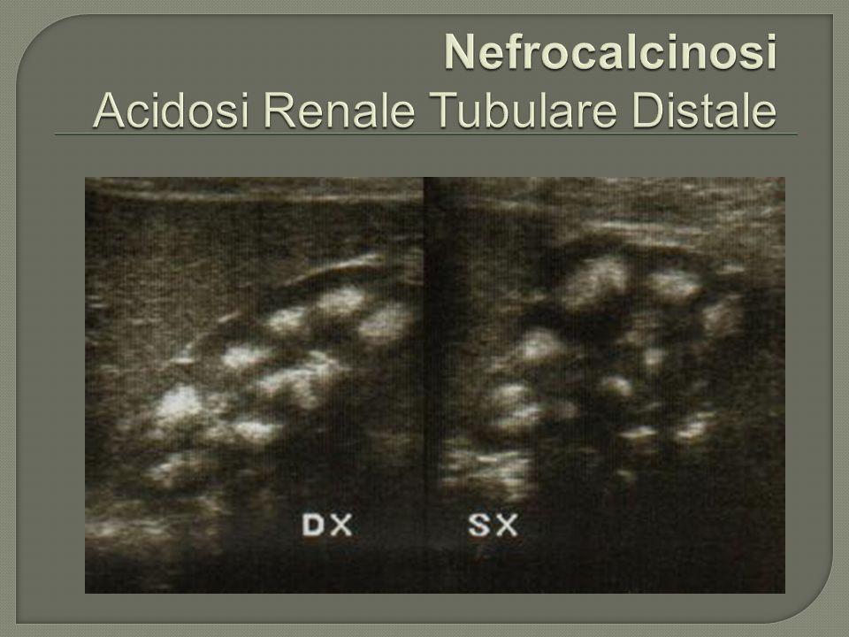 Nefrocalcinosi Acidosi Renale Tubulare Distale