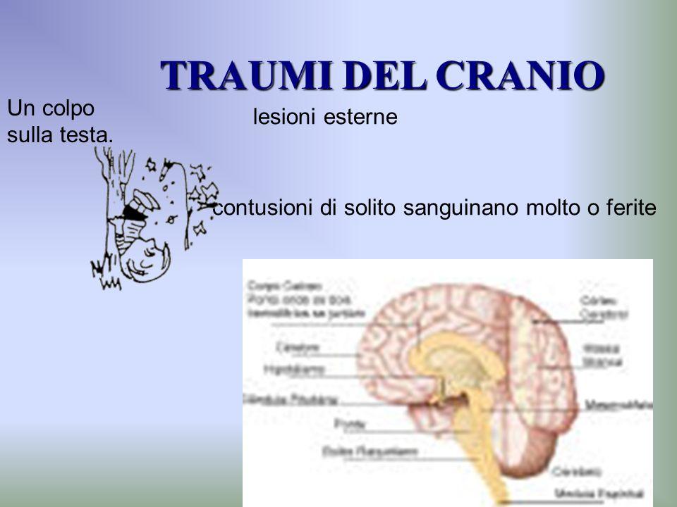 TRAUMI DEL CRANIO Un colpo sulla testa. lesioni esterne