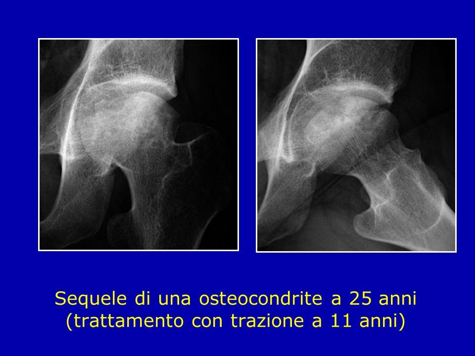 Sequele di una osteocondrite a 25 anni (trattamento con trazione a 11 anni)
