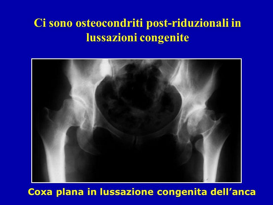 Ci sono osteocondriti post-riduzionali in lussazioni congenite