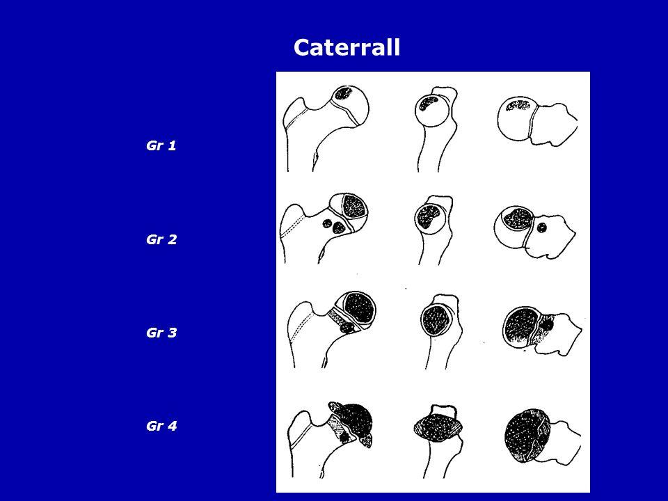 Caterrall Gr 1 Gr 2 Gr 3 Gr 4