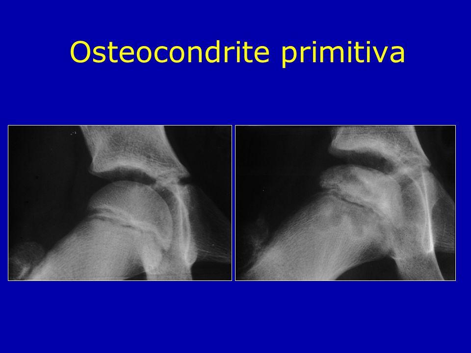 Osteocondrite primitiva